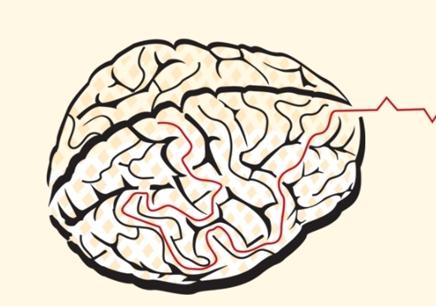 脑电生物反馈课程